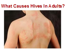 What Causes Hives In Adults?
